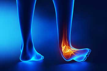 Foot and Ankle Sprain