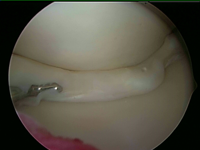 Locked Medial Meniscal Tear