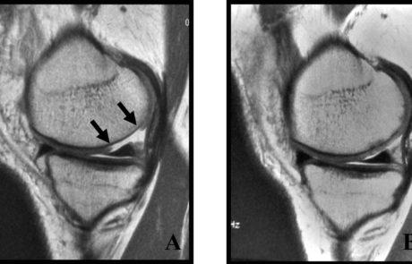 MRI Knee Cartilage Healing