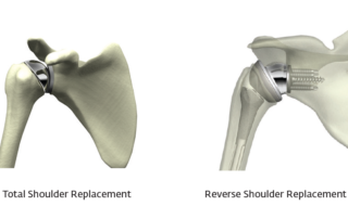 Shoulder Implant
