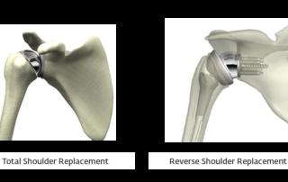 Shoulder Implant