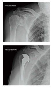 XRay Turon - Shoulder Repair